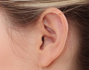 otoplasty ear pinning