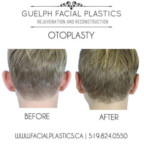 Otoplasty Explained