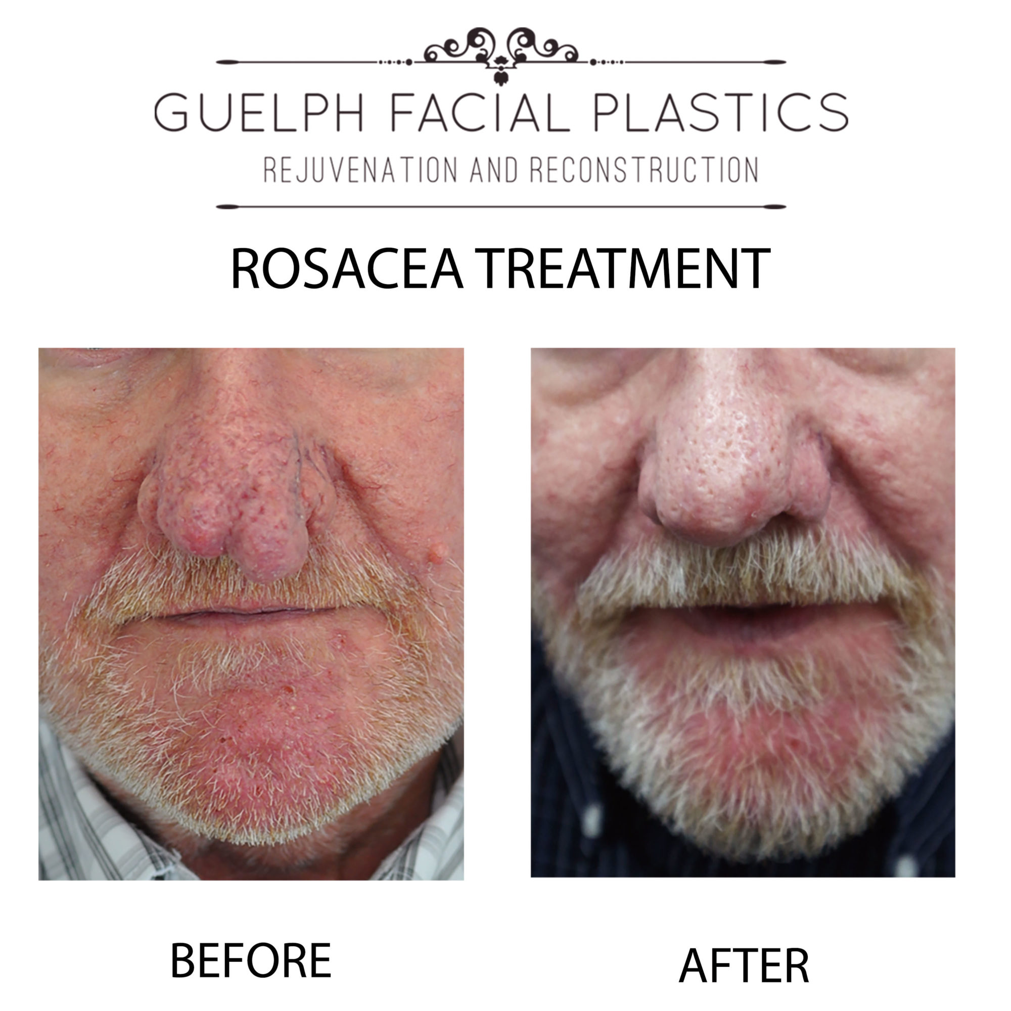 Rosacea CO2RE and VBeam Perfecta