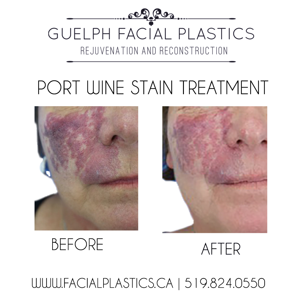 VBeam Perfecta for Port Wine Stains - Guelph Facial Plastics