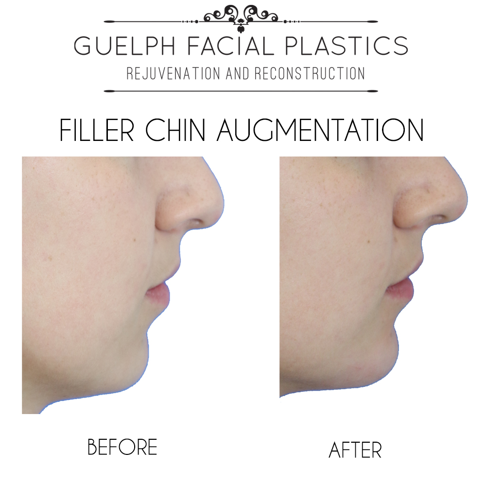Non-Surgical Chin Augmentation with Fillers - Guelph Facial Plastics