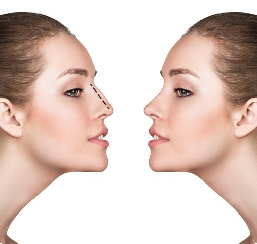 Everything You Need to Know About Rhinoplasty | Guelph Facial Plastics