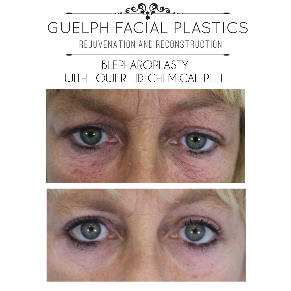 Renew Your Skin: Chemical Peels | Guelph Facial Plastics