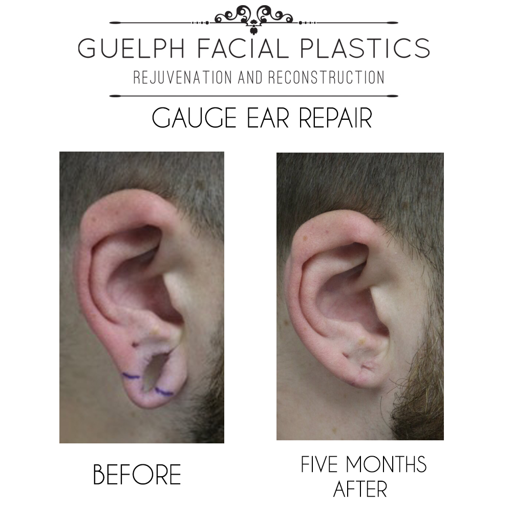 The Ear Gauge Fix | Facial Reconstructive Surgery | Guelph Facial Plastics