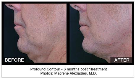 profound contour guelph facial plastics