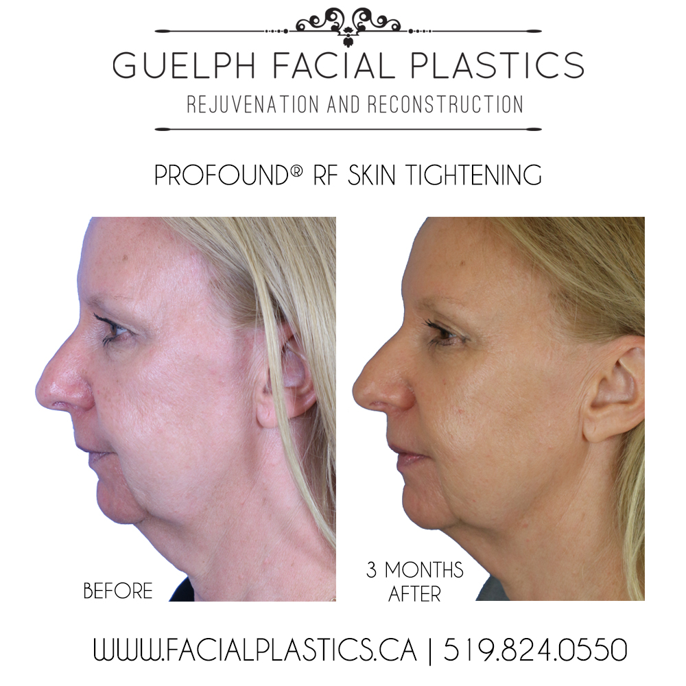 The Non-Surgical Facelift