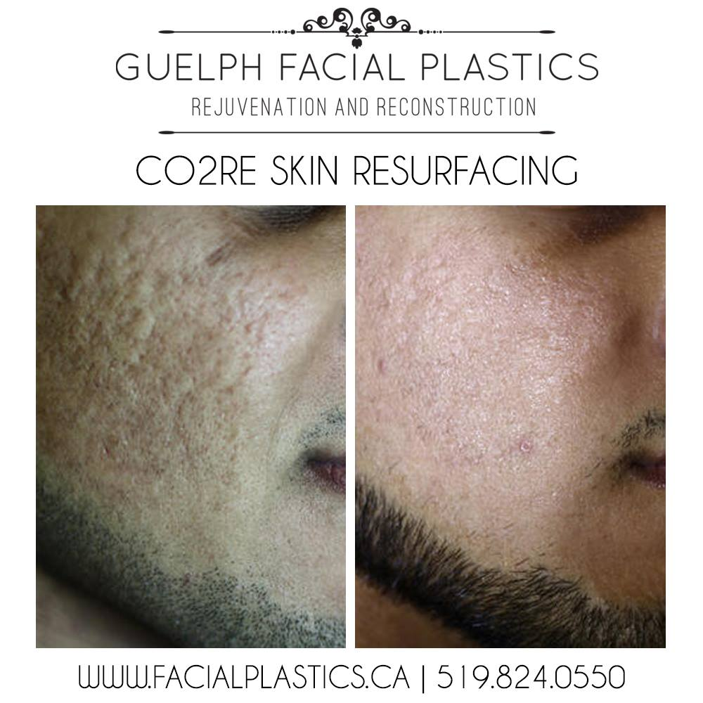 cor2e skin resurfacing before and after guelph facial plastics