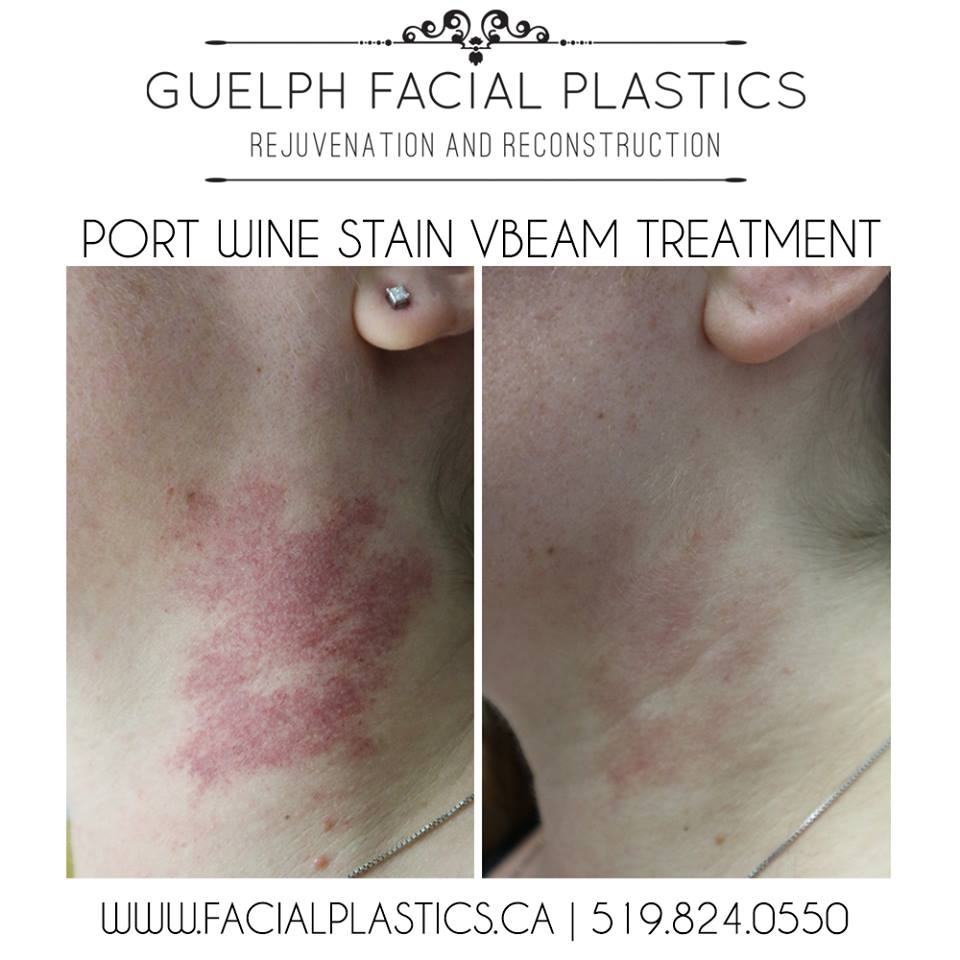 port wine stain removal vbeam perfecta before and after