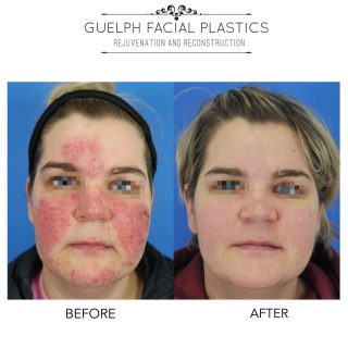 This is no joke!  April is #RosaceaAwarenessMonth and we are throwing it back to 2 of our favourite transformations today!  Rosacea is a chronic skin inflammatory condition that affects the central area of the face. Over 3 million Canadians are affected by this condition each year.  We are so happy we were able to help these 2 patients control their rosacea with the help of our Vbeam and CO2RE laser treatments.   Questions? Comment below! _____________________________ 📞 519-824-0550 🌐 facialplastics.ca 📍 690 Woolwich St. Suite 2 Guelph, ON 👤 Facebook: Guelph Facial Plastics . . . @syneroncandela @candelamedicalcanada @candelamedical #guelph #rosacea #rosaceatreatment #rosaceaskincare #facelift #plasticsurgery #skincare #skincareroutine #acne #acnetreatment #acnescars #milton #toronto #facialplastics #facialplasticsurgery #facialplasticsurgeon #instadaily #instamood #thursday #april #aprilfools #guelphlife #guelphsmallbusiness #guelphbusiness #easter #happyeaster #eyelidlift #eyebrowlift #facialtreatment