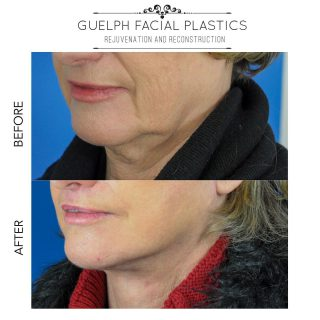 Another incredible before and after!  This patient presented for assessment and management of her aging face. She was interested in a total facial rejuvenation wanting to lift her neck, jawline, brows, and address her upper and lower lids. Dr. Brace performed a deep plane facelift with a temporal brow lift, upper skin pinch blepharoplasty, lower lid transconjunctival blepharoplasty with fat transposition and skin pinch and upper lip lift.  The results speak for themselves! Dr. Brace and the patient are very happy.   👨🏻⚕️ Consult: 45-60 mins ⏰ Procedure: 5.5 hour surgery  📅 Recovery: 2-3 weeks for bruising to settle  ⭐ Duration of Results: 10+ years on average  ✏️ Note: Individual results may vary. This is an actual patient who has consented to the use of these photos. Please do not copy or distribute without permission. _____________________________ 📞 519-824-0550 🌐 facialplastics.ca 📍 690 Woolwich St. Suite 2 Guelph, ON 👤 Facebook: Guelph Facial Plastics . . . #blepharoplasty #eyelidsurgery #eyelidlift #facialplasticsurgeons #liplift #facialplasticsurgeon #facialplasticsurgery #guelphfacialplastics #guelph #kitchener #mississauga #milton #beforeandafter #browlift #facialplastics #skinpinch  #guelphdoctor #facialsurgeon #browlift #facialsurgery #guelph #guelphlove #guelphlife #local #localsurgeon #localdoctor #skinexpert #healthyskin #deepplanefacelift #facelift #liposuction #fattransfer